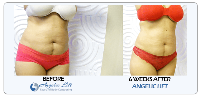 Angelic Lift No Cut Tummy Tuck Face Lift Butt Lift and Body Contouring