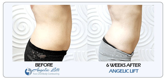 tummy tuck in lake mary