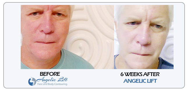 before after face lifting tightening man